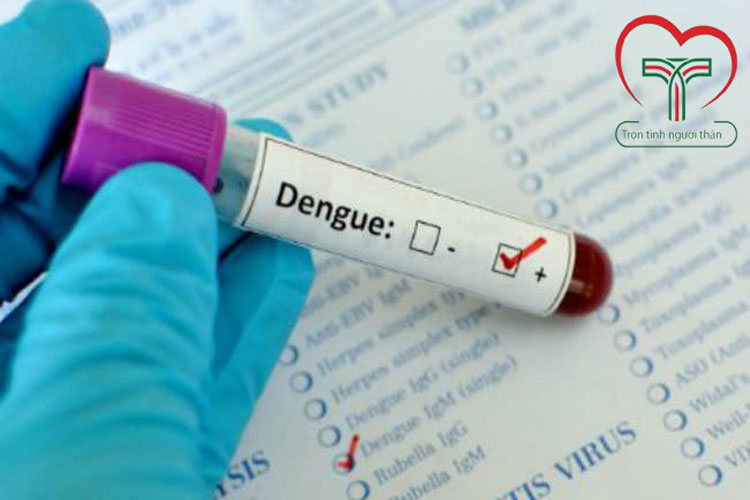 xet-nghiem-dengue-test-chan-doan-sot-xuat-huyet