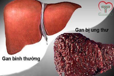 Những điều bạn cần biết về bệnh ung thư gan giai đoạn cuối