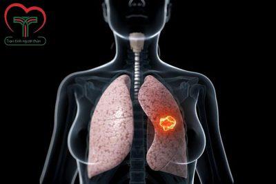 Tổng hợp 14 câu hỏi về bệnh ung thư phổi bạn cần biết