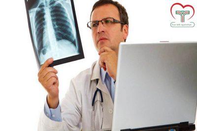 Tại sao khi phát hiện ung thư phổi thường đã ở giai đoạn muộn?