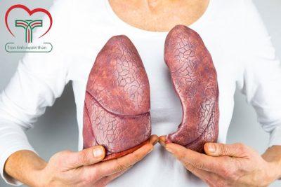 Top 10 nghề nghiệp có nguy cơ mắc bệnh ung thư phổi cao nhất