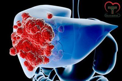 Ung thư gan di căn như thế nào? Triệu chứng ung thư gan di căn