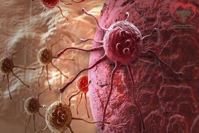 Ung thư phổi có mấy loại? Ung thư phổi sống được bao lâu?